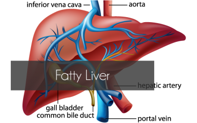 Fatty Liver Disease – The Silent Epidemic