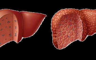 About Liver Cirrhosis