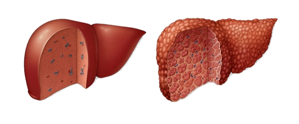 About Liver Cirrhosis