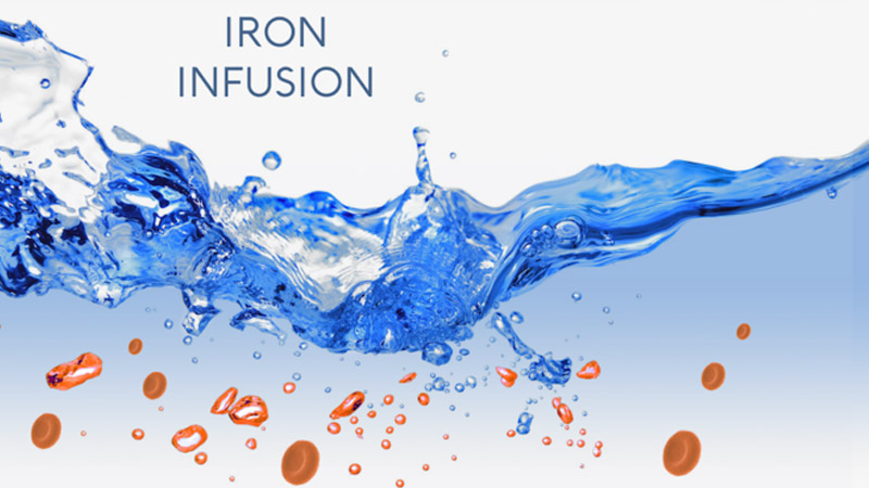 Iron Infusion – A Burst of Energy ??